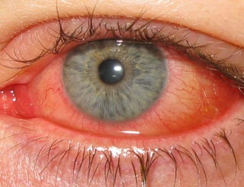 Naturopathic Support for Conjunctivitis