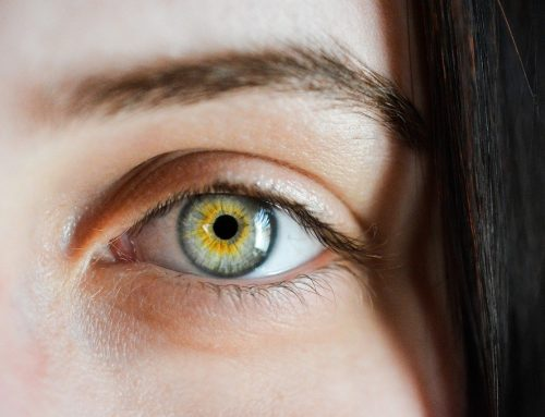 Naturopathic Support for Cataracts by A Naturopathic Doctor